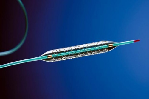 NPPA revises stent prices a year after 85% cut in costs