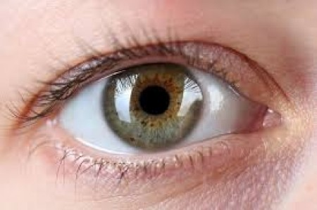 Risk of developing eye freckles due to high sun exposure